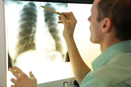 PD-1/PD-L1 Inhibitors May Increase the Risk of Hyperprogressive Disease in NSCLC