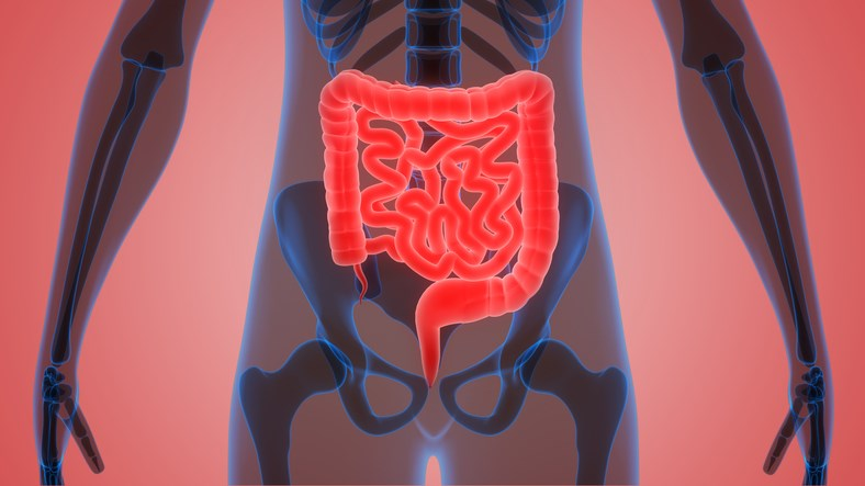Rarely, patients with prostate cancer will develop metastases to the gastrointestinal tract, which limit treatment options.