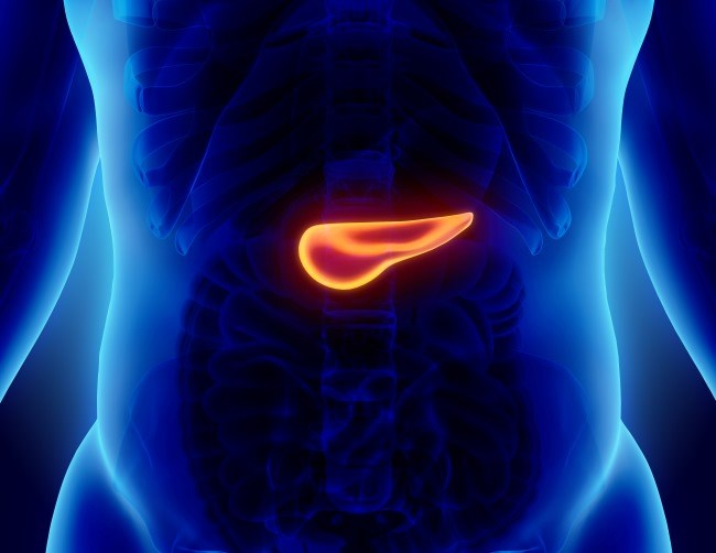 PEGPH20 Plus mFOLFIRINOX Worsens OS Among Patients With Pancreatic Cancer