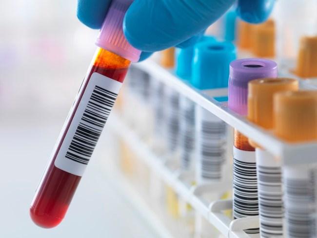 HIV-Associated Cancers: A Paradigm Shift?