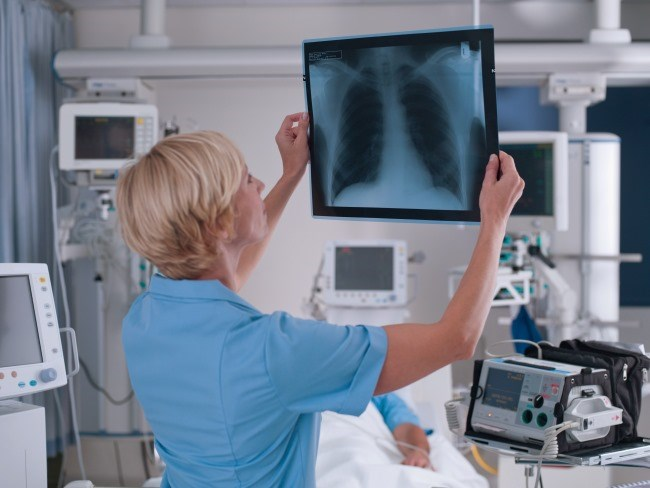 Patients with severe complications, such as interstitial lung disease, are often excluded from clinical studies assessing chemotherapy in NSCLC.