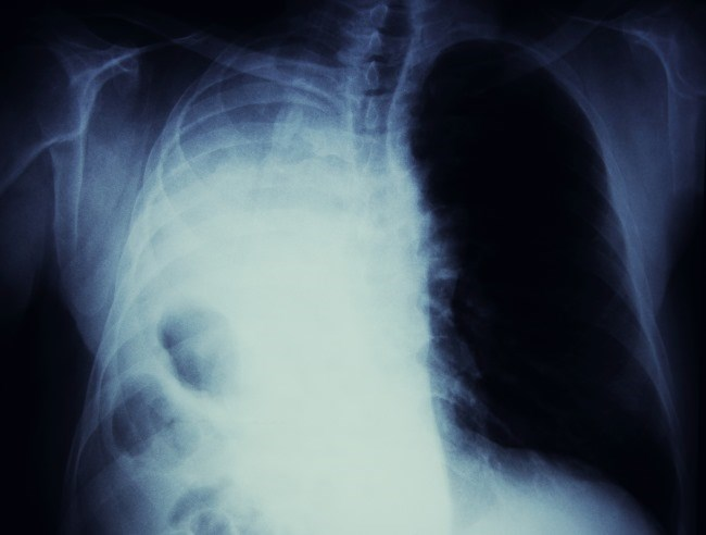 Many immunotherapy-based combinations are being studied in NSCLC, with TMB emerging as a potential predictive biomarker.