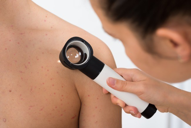 A new model has the potential to identify patients with melanoma who could benefit from treatment with checkpoint inhibitors.
