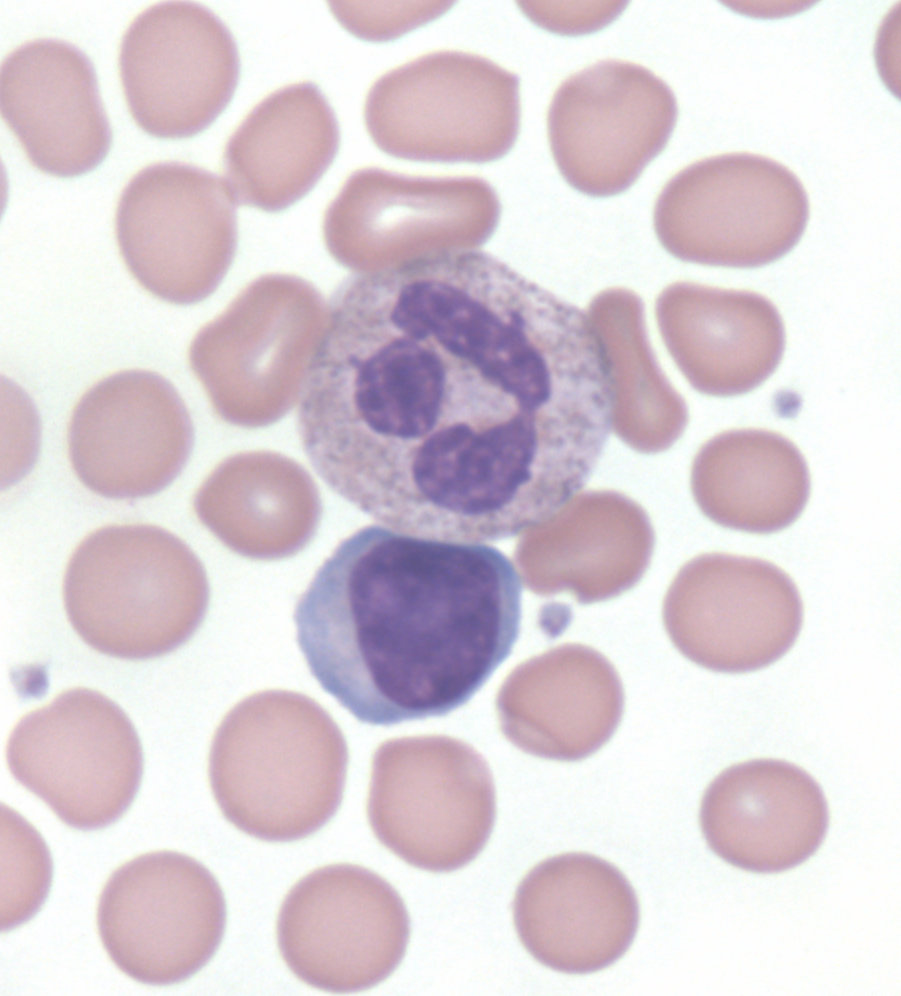 Leukocytes: what they tell