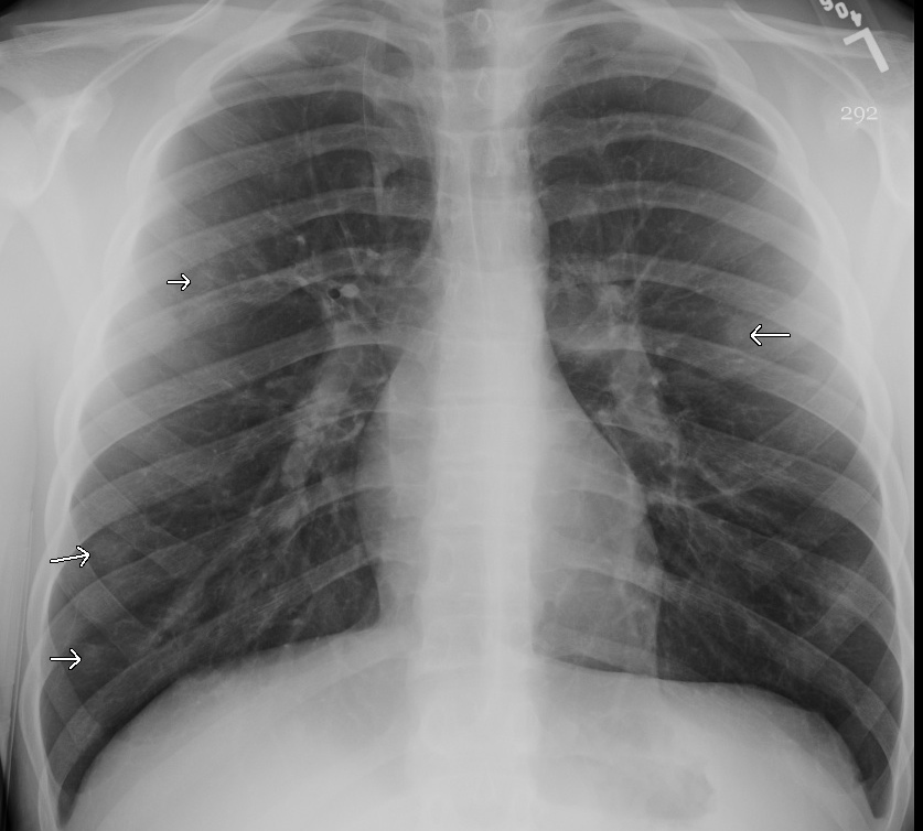Plain Chest Radiograph Showing Multiple Nodules In Child With Coccidiomycosis