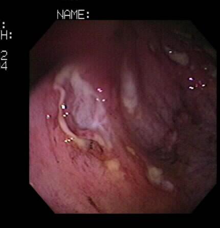 Sperm ulcerative colitits, armless legless male nude