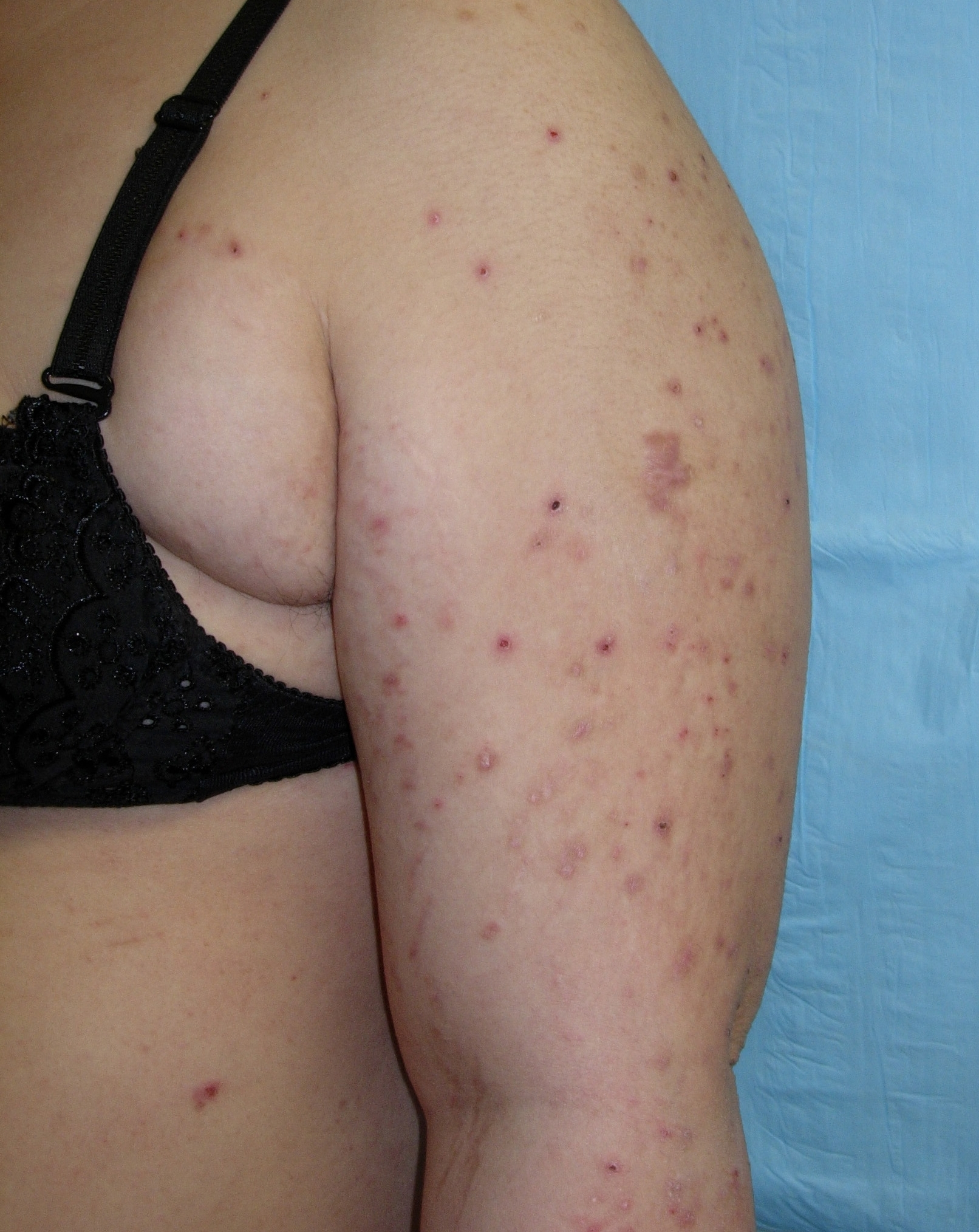 other dermatoses in pregnancy - cancer therapy advisor