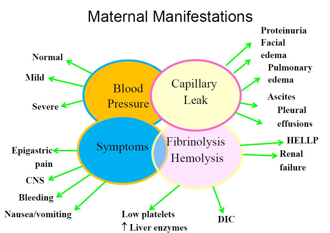 Gestational Hypertension - Preeclampsia