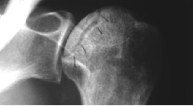 Osteonecrosis of the Humeral Head - Cancer Therapy Advisor