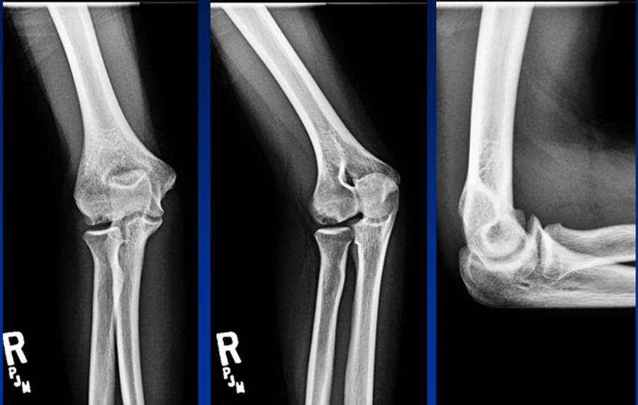 Elbow osteochondritis dissecans - Cancer Therapy Advisor